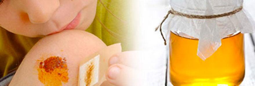 pansements au miel de manuka